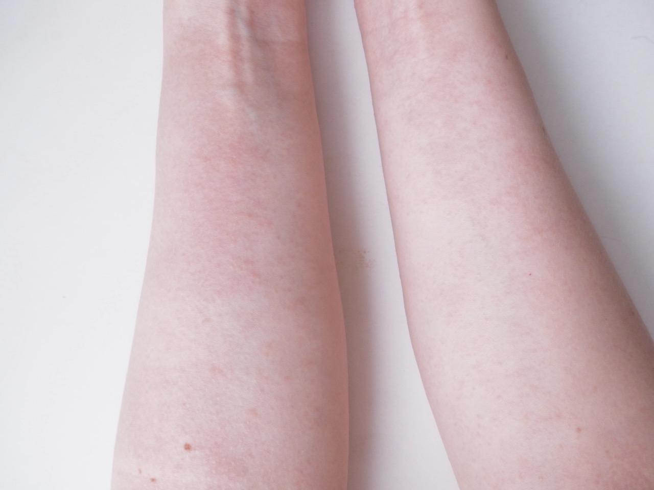 kosmetiikka allergia vai ärsytysreaktio