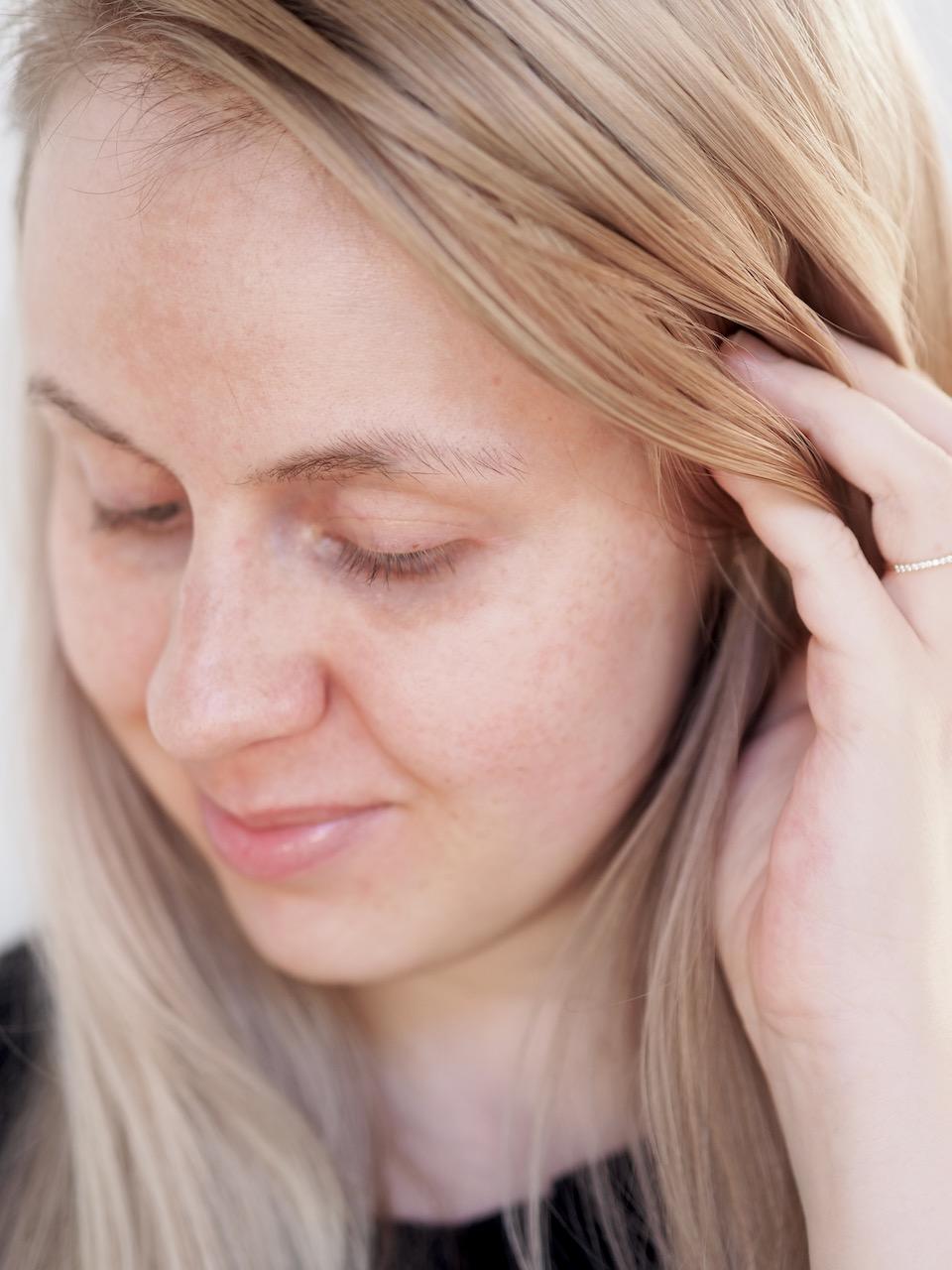 seborrooinen ekseema päänahassa kokemuksia